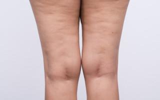 Как устранить целлюлит в зоне бедер и на ногах: эффективные методы