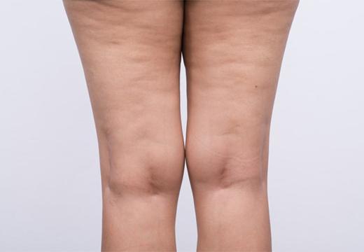 ноги с целлюлитом