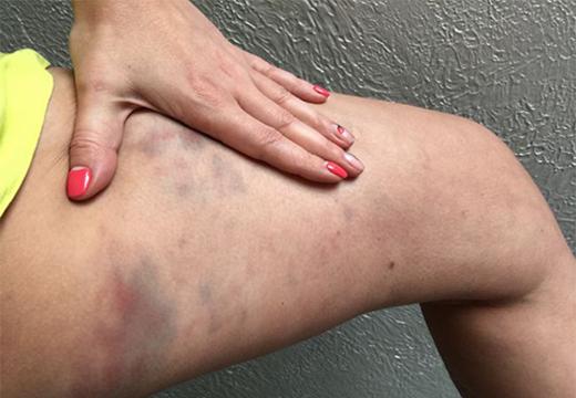синяки на ногах