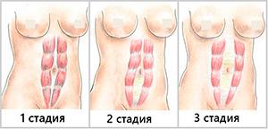 стадии диастаза