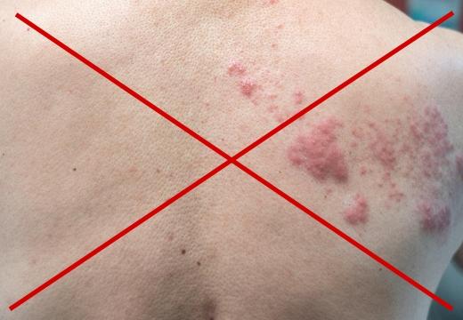 нельзя при кожных инфекциях