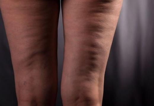 целлюлит на худых ногах