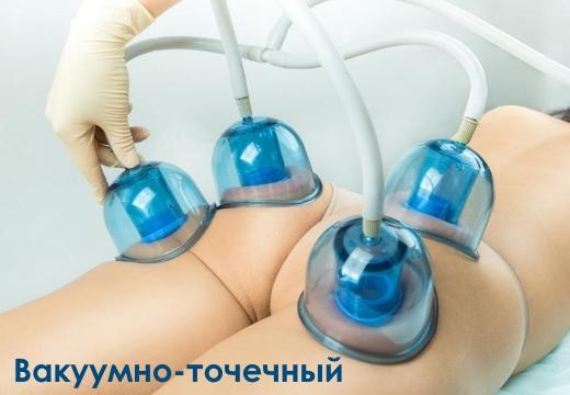 вакуумно-точечный антицеллюлитный массаж