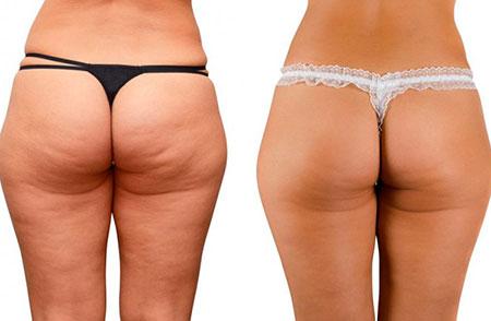 ягодицы до и после упражнений