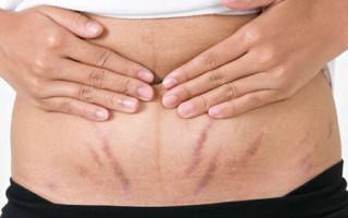 Растяжек на животе после родов: особенности появления и правила избавления