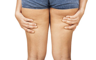 Почему целлюлит проявляется у худых девушек