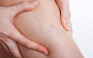 Плюсы и минусы антицеллюлитного массажа при варикозе