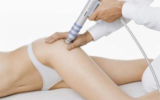 Применение техники ударно-волновой терапии при целлюлите