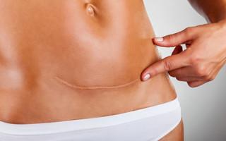 Обвисший живот после кесарева сечения: причины и методы похудения