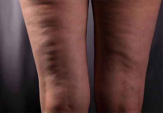 задняя поверхность ног