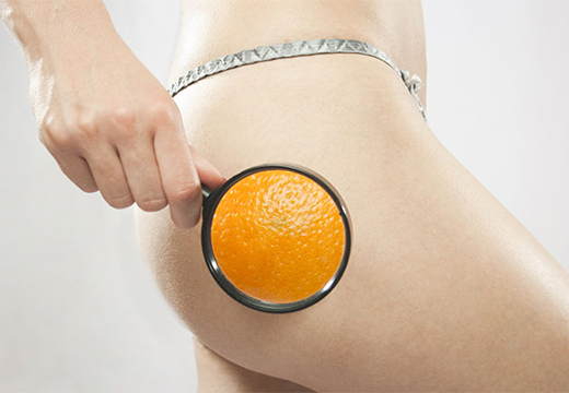 эффект апельсиновой корки