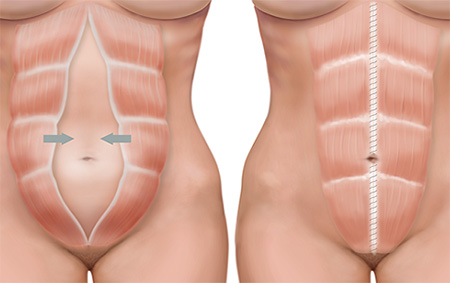 мышцы при диастазе