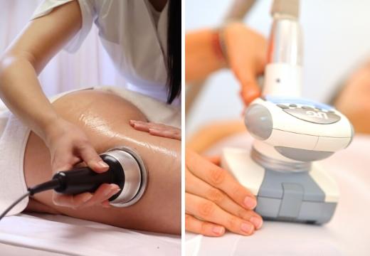 кавитация и LPG массаж