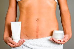 Косметические процедуры для похудения живота